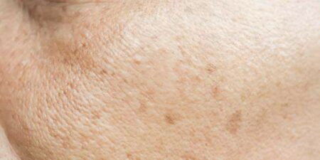 lentigos-solaires-lyon-esthetique-docteur rabilloud